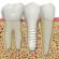 Ghid de incepatori – Ce sunt implanturile dentare